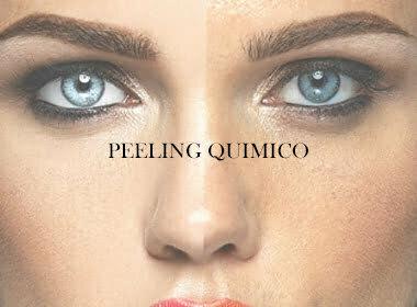 peeling quimico efectos peeling quimica rejuvenecimiento facial medica estética madrid medicina estética chamberi