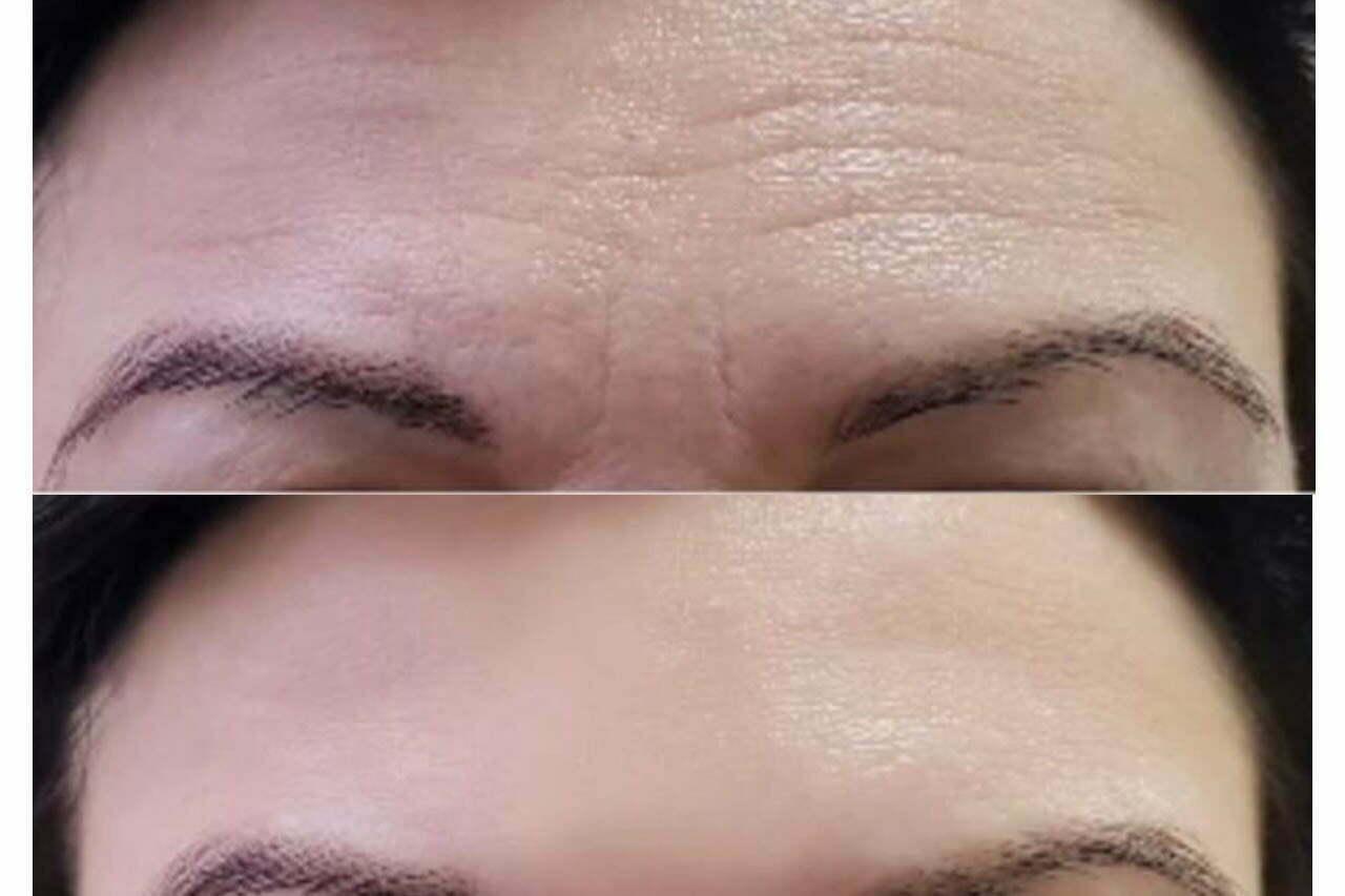 eliminar-arruga-en-la-frente-medicina-estetica-madrid