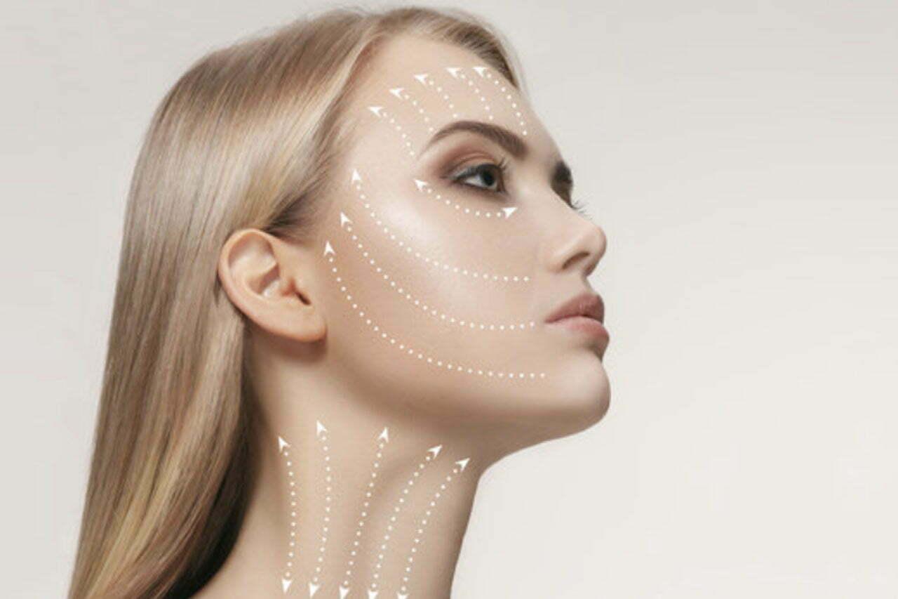 Silhouette Soft hilos tensores medicina estética madrid