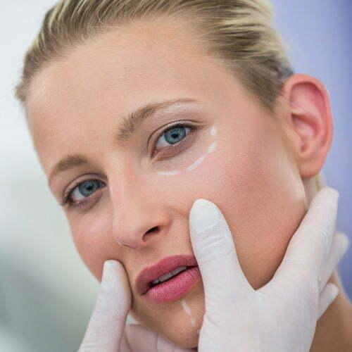 acido hialurónico madrid eliminar arrugas de expresion