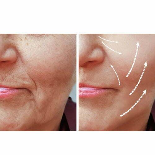 aumento de pómulo medicina estética madrid