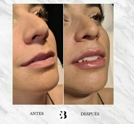 aumento de labios con ácido hialuronico