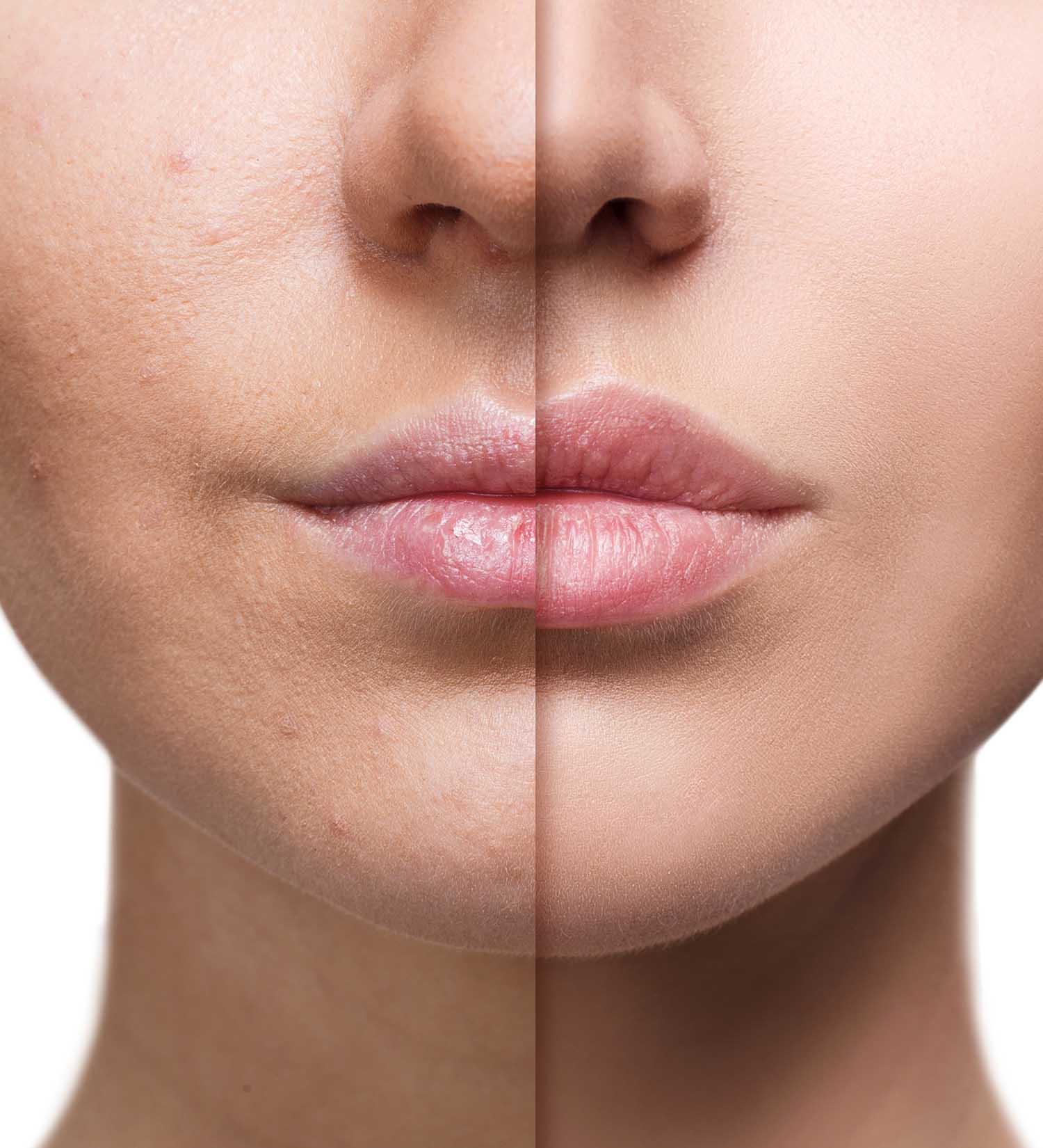 relleno aumento de labios