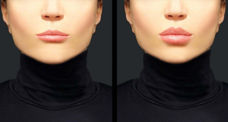 aumento de labios permanente