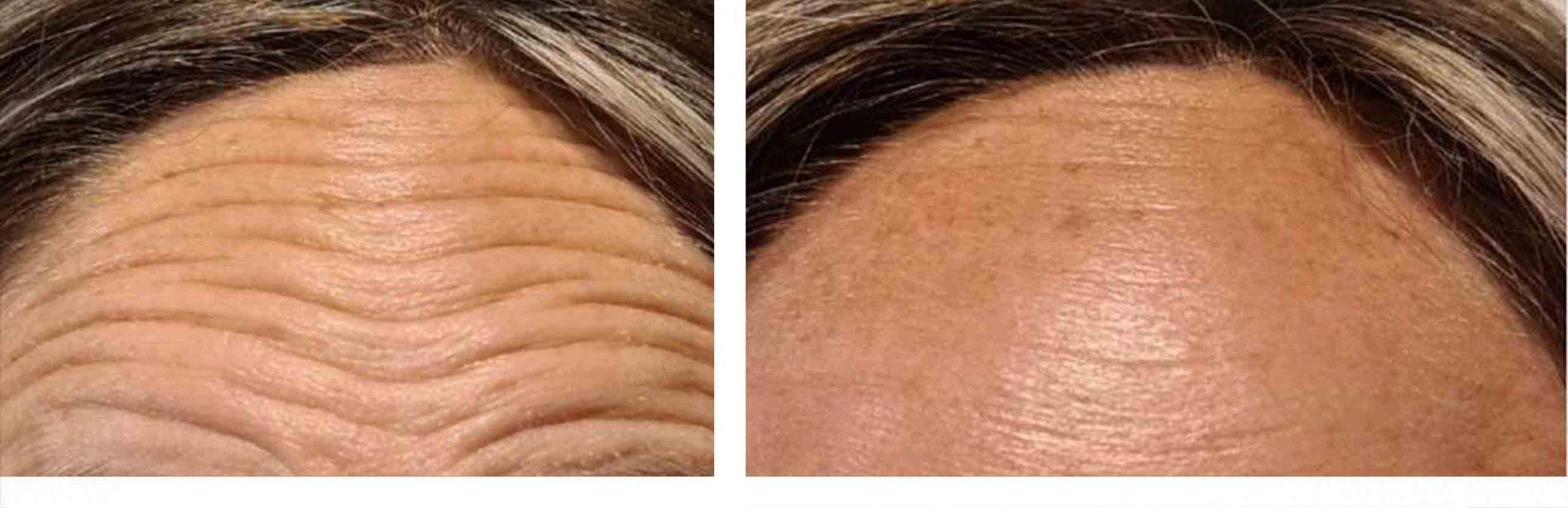 eliminar arrugas frente botox